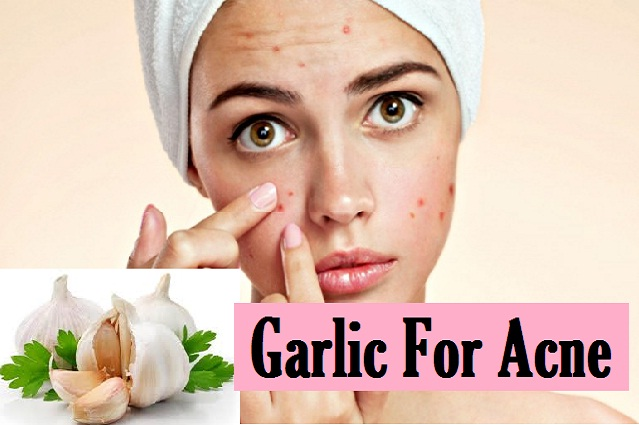 Benefits of using garlic for acne treatment