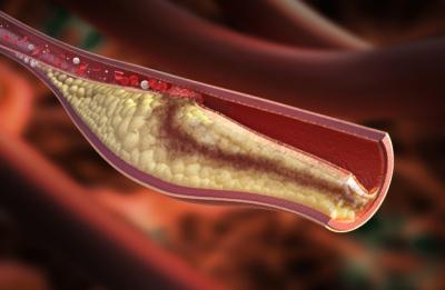 LDL Cholesterol.jpg
