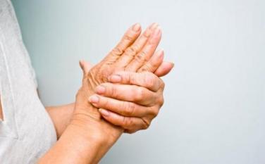 Arthritis patients.jpg