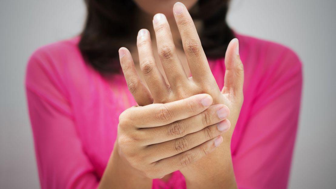Arthritis sd